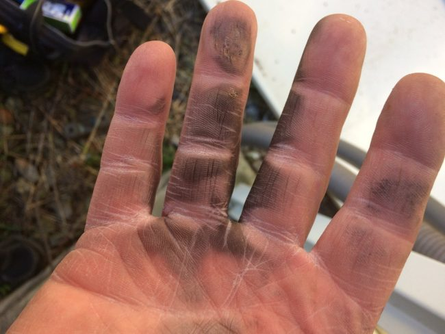 Arc burns, right hand